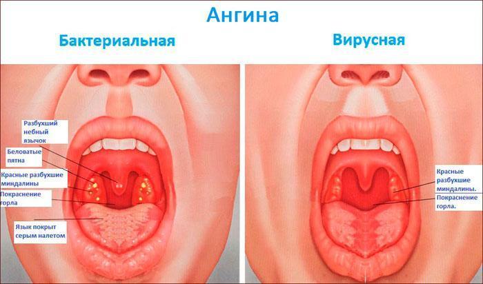 симптомы и виды ангины