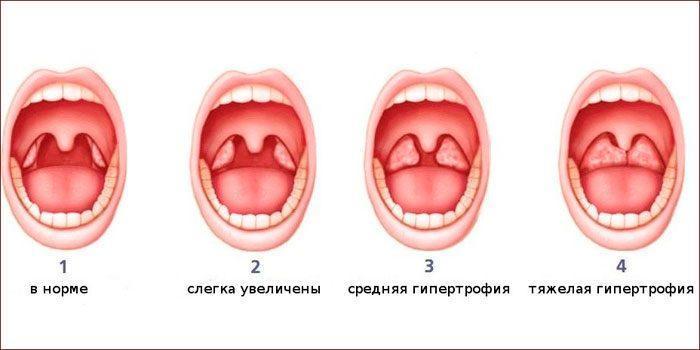 степени аденоидов у детей