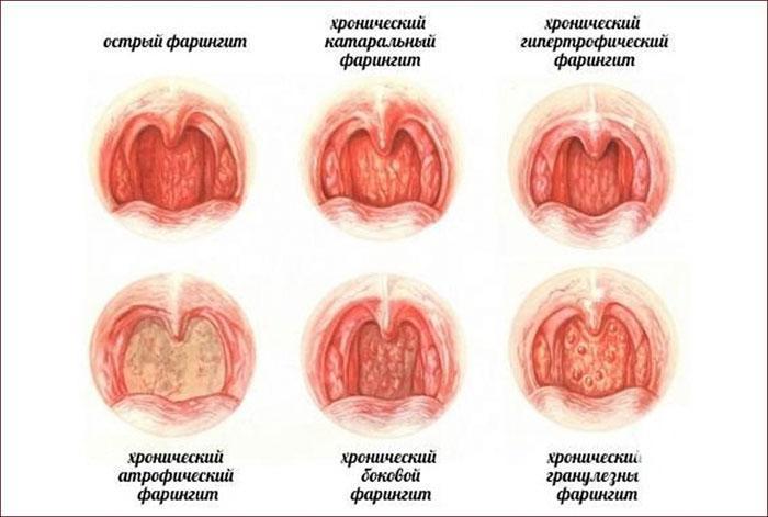 симптомы и виды фарингита