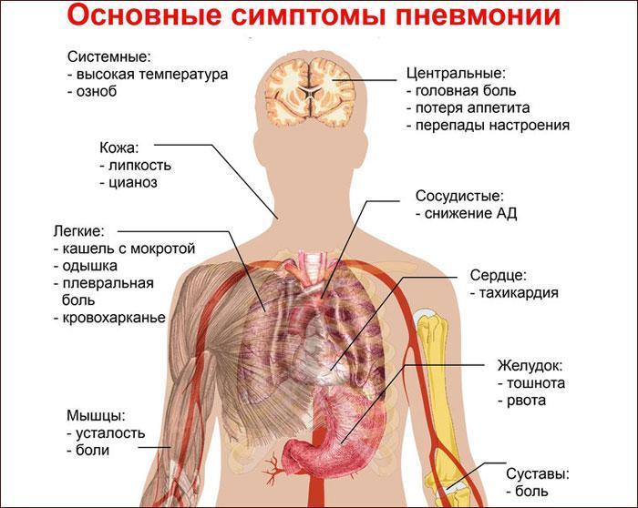 основные симптомы пневмонии