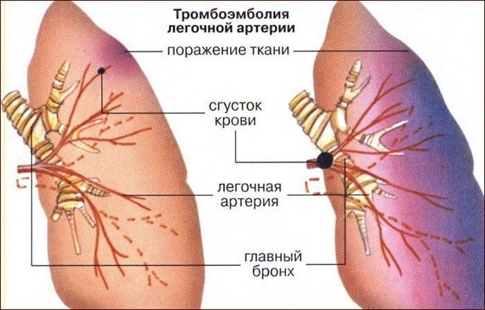 лёгочная эмболия