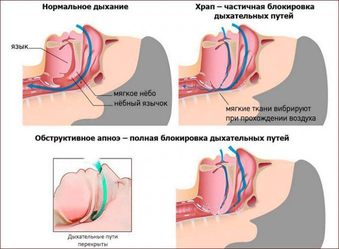 Синдром обструктивного апноэ