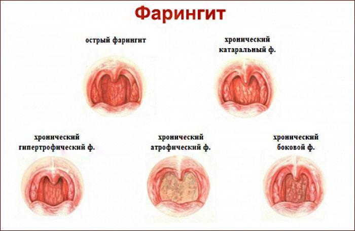 виды и симптомы фарингита