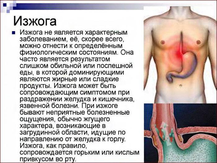 симптомы изжоги