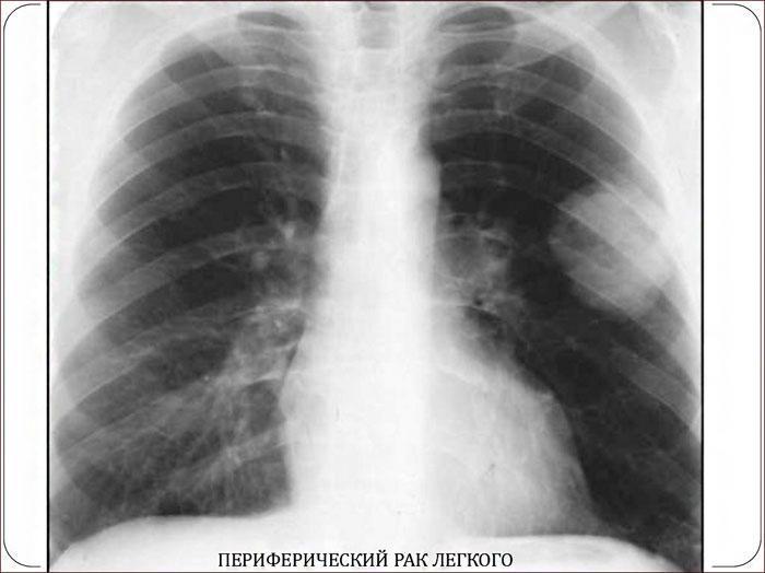 Периферический рак легкого на рентгене