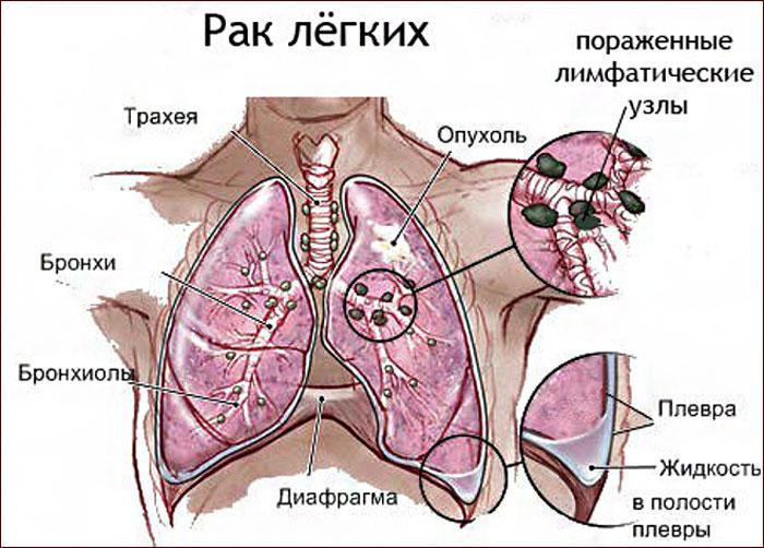 специфика рака лёгких