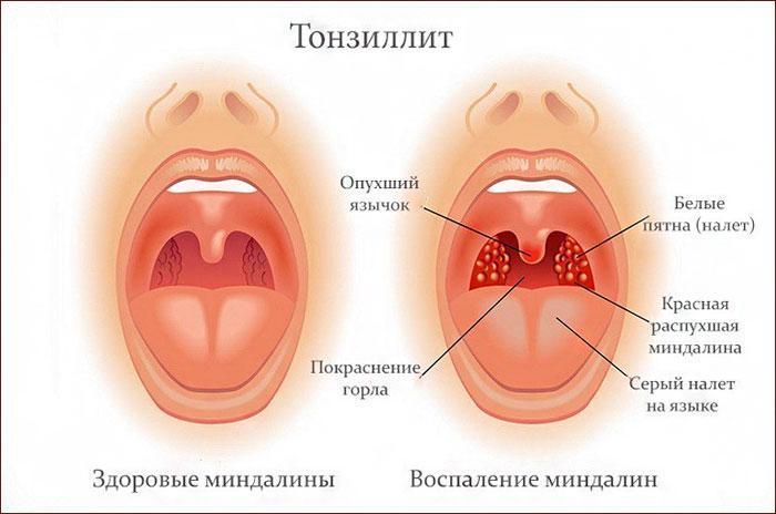 Симптомы тонзиллита