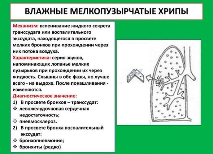 Диагностика влажных мелкопузырчатых хрипов