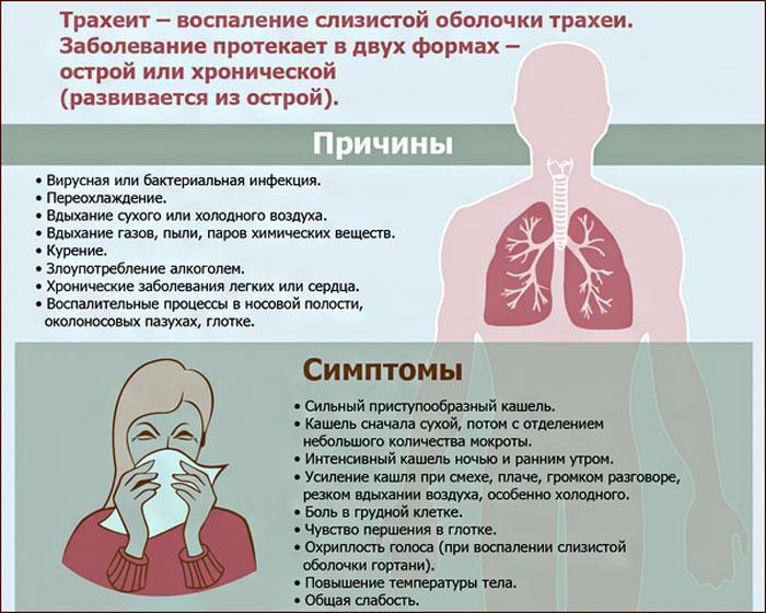 Симптомы и причины трахеита.