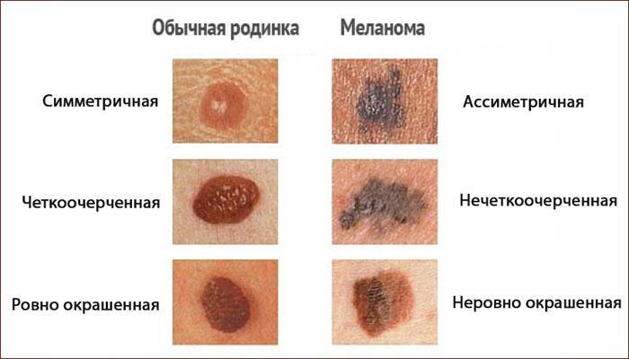 Отличия меланомы от родинки
