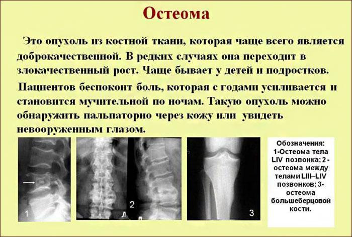 Характеристика остеомы.