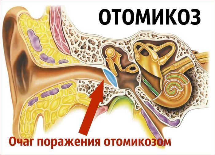 Расположение очага поражения Отомикозом.