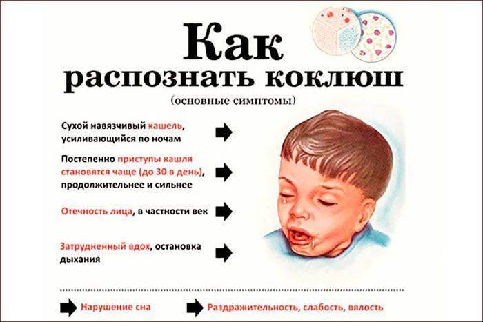 Симптомы коклюша