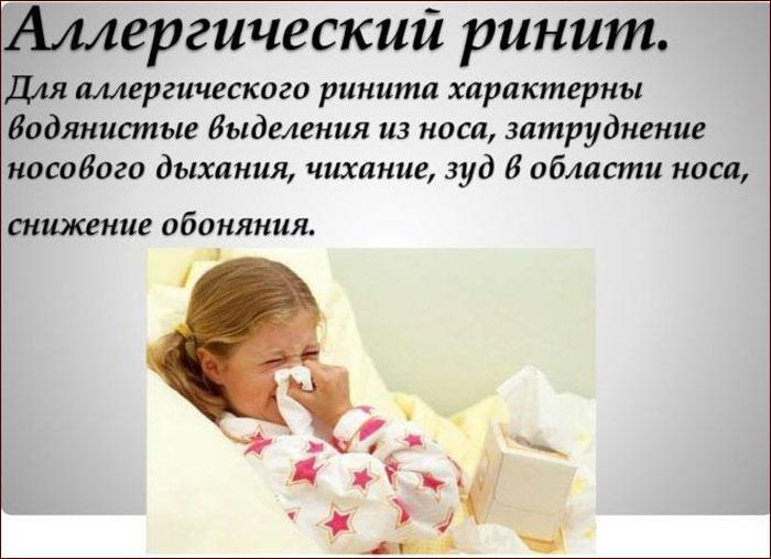 Симптомы аллергического ринита.