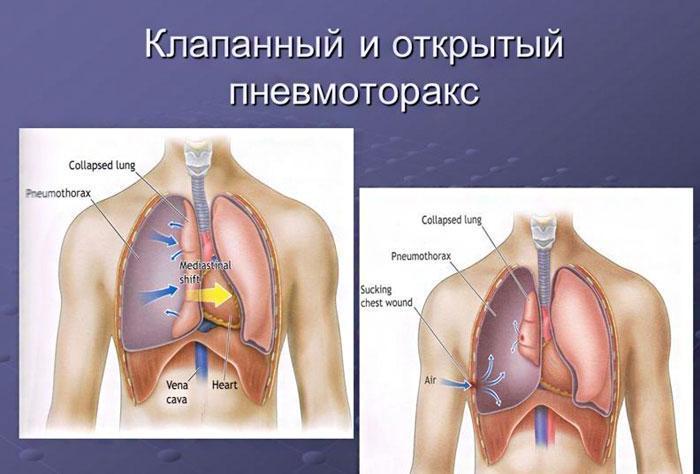 Изображение клапанного/открытого пневмоторакса.