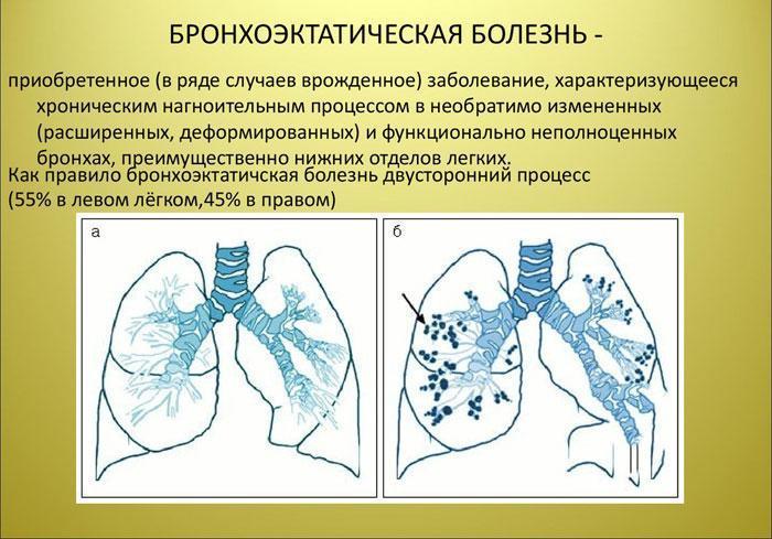 Бронхоэктатическая болезнь: определение, признаки.