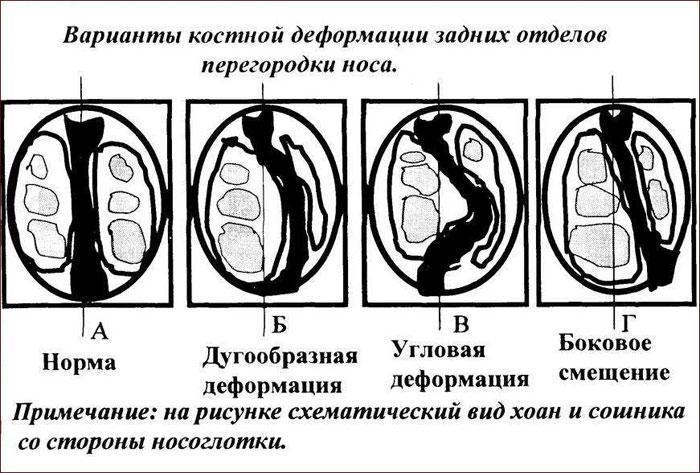 Типы деформации носовой перегородки.