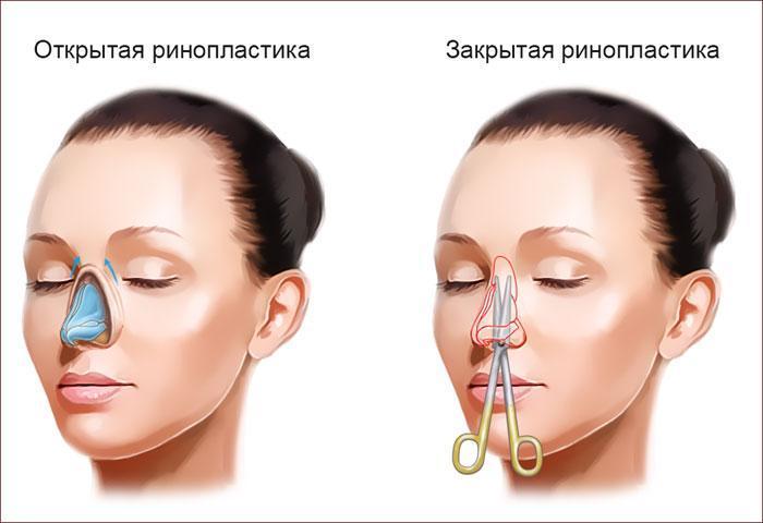 Открытая и закрытая ринопластика носа.