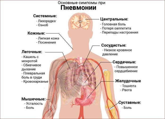 Основные симптомы при пневмонии.