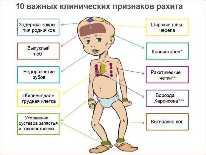Признаки рахита у детей.