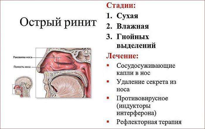 Симптомы и стадии острого ринита