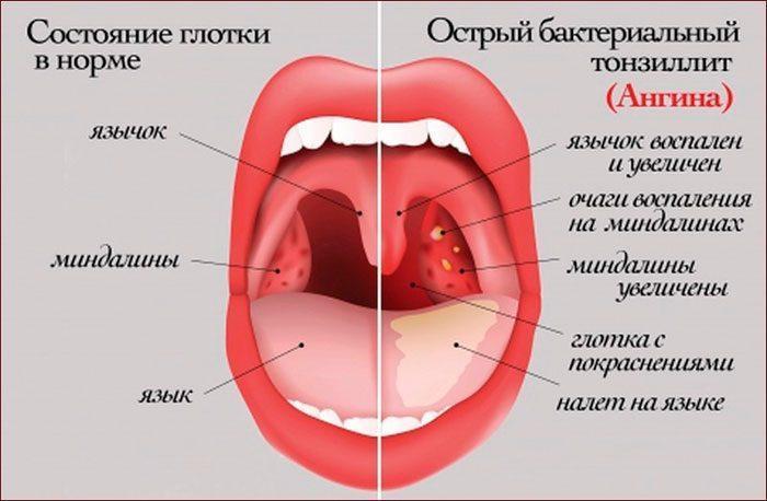 Признаки ангины