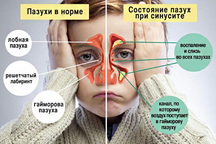 Симптомы синусита у детей.
