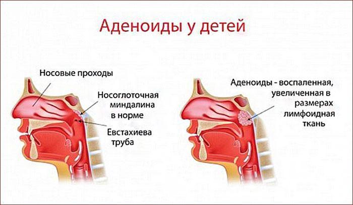 Признаки аденоидита у детей