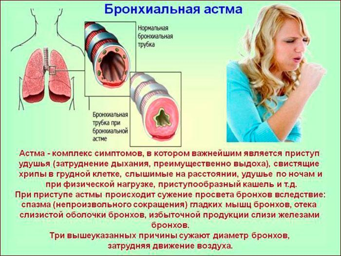 бронхиальная астма, симптомы