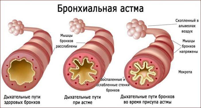 Патогенез бронхиальной астмы