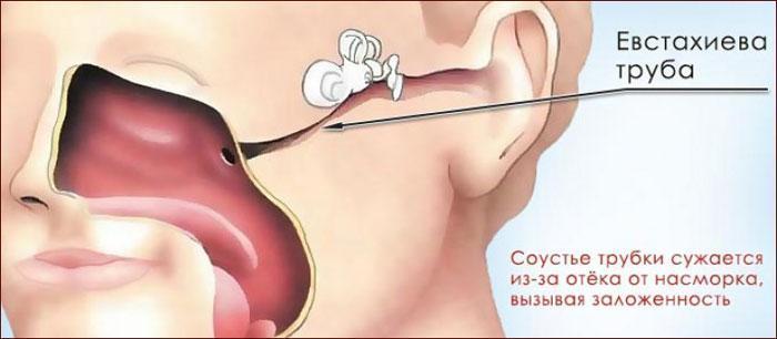 Причины заложенности уха.