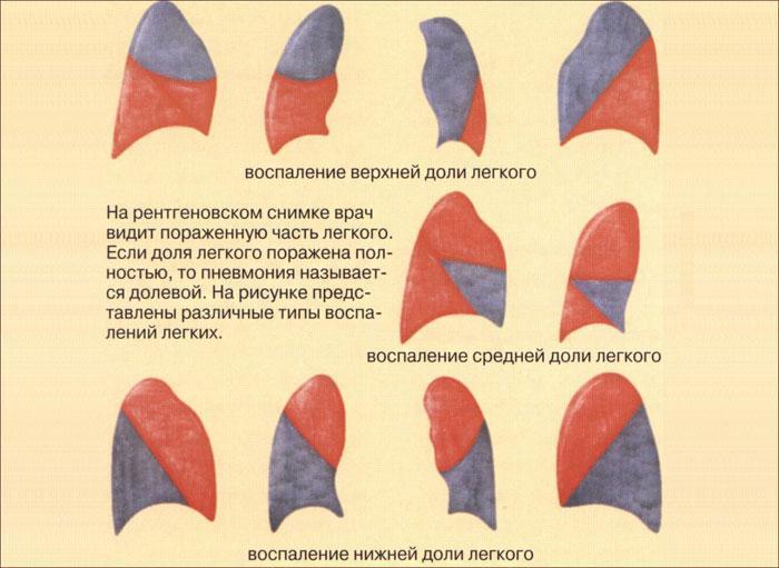Воспаление врехней, средней и нижней доли легкого