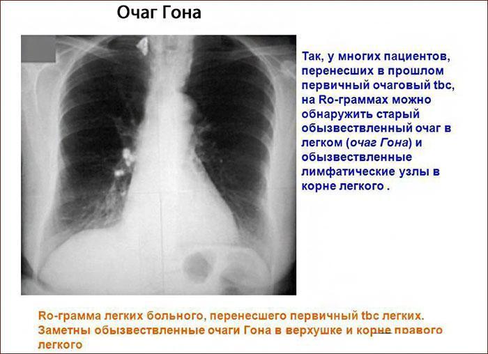 Очаг Гона на рентгене