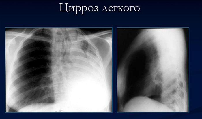 Цирроз легкого на рентгенограмме
