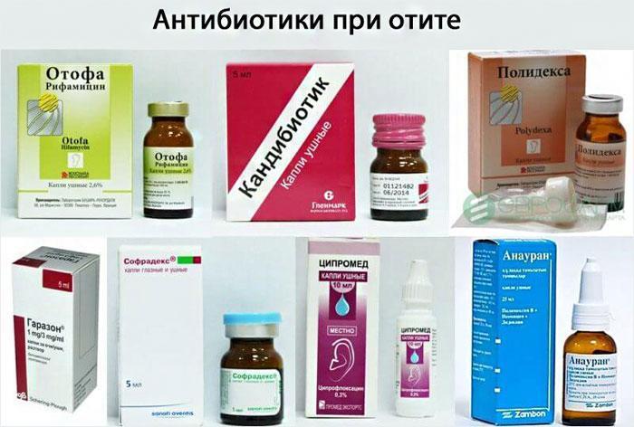 Антибиотики при отите