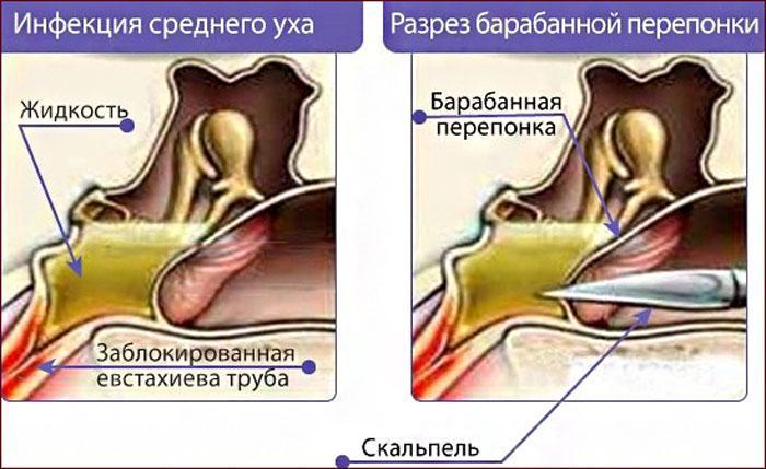 Разрез барабанной перепонки при инфекции уха