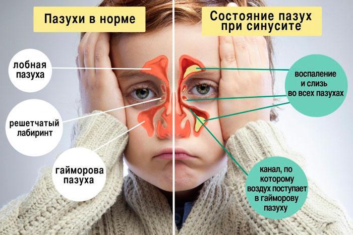 Признаки синусита
