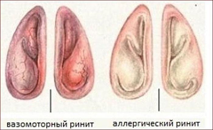 Различия вазомоторного и аллергического ринита