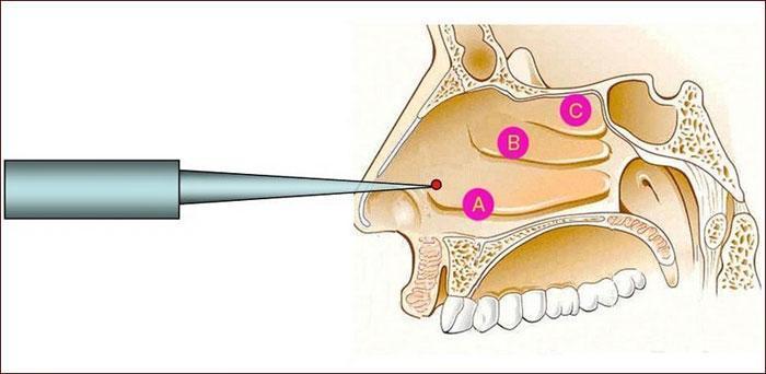 Методика радиоволновой дезинтеграции нижних носовых раковин
