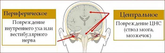 Периферический и центральный вестибулярный синдром