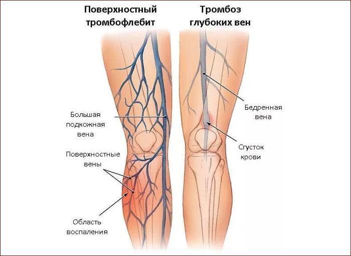 Причины тромбоза глубоких вен