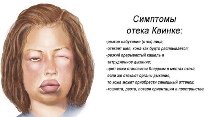 Симптомы отёка Квинке