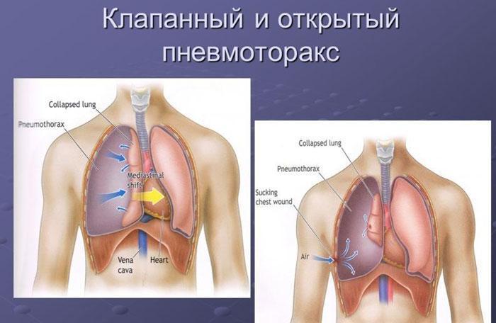 Клапанный и открытый пневмоторакс