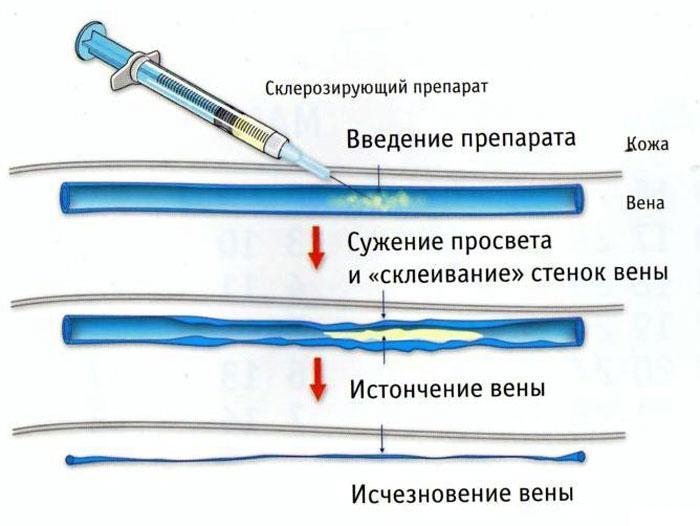 Механизм склерозирования