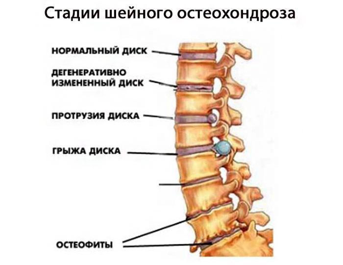 Стадии шейного остеохондроза