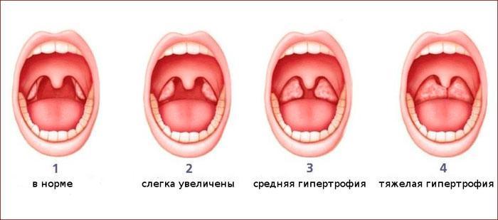 степени гипертрофии миндалин