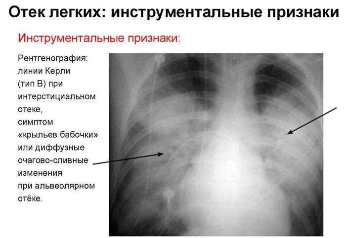 Отёк лёгких на рентгенограмме