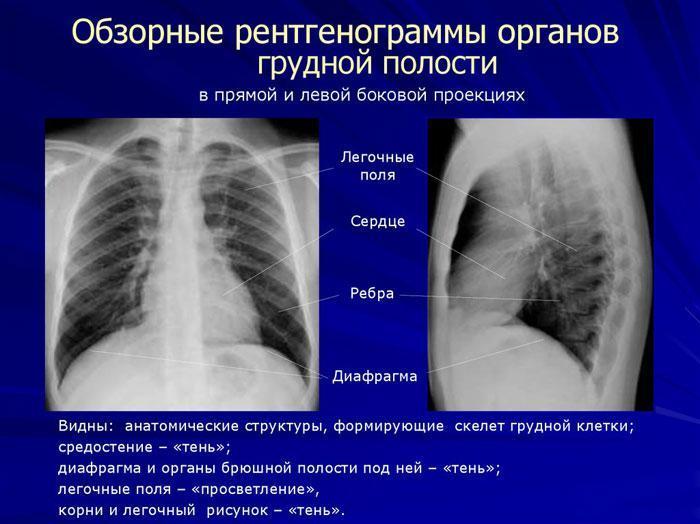 Обзорные рентгенограммы органов грудной полости