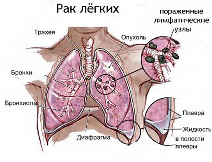 Признаки рака лёгкого