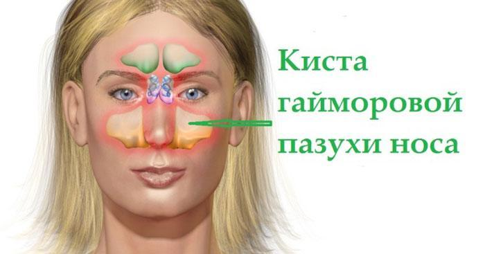 Киста гайморовой пазухи носа